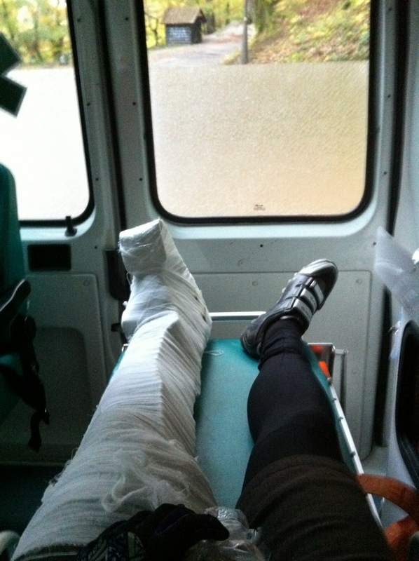And so, I broke a leg due to SPD ...-img_1215.jpg