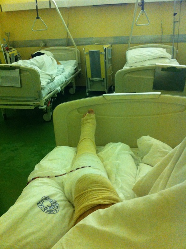 And so, I broke a leg due to SPD ...-img_1219.jpg