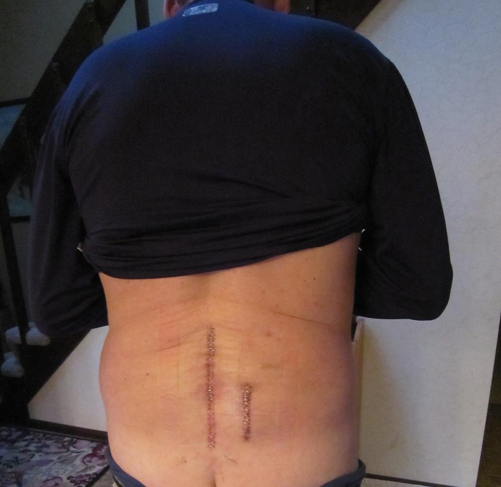 Lumbar Surgery - My turn under the knife....again! Laser Spine Inst / Conventional?-img_1239.jpg