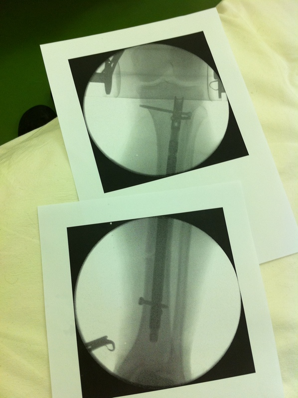 And so, I broke a leg due to SPD ...-img_1239.jpg