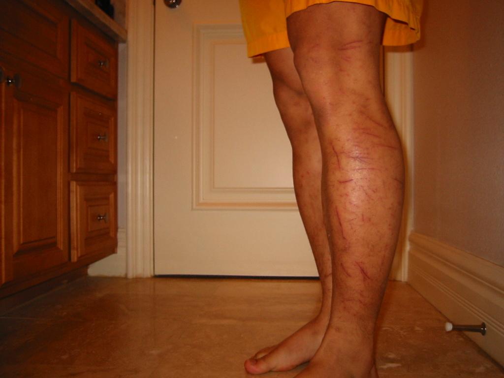 You wear knee pads on each ride?-img_1241.jpg