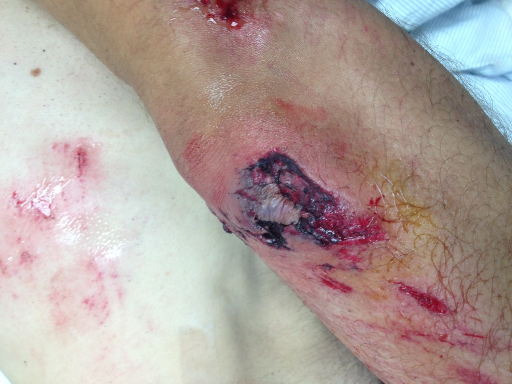 Got Close and Personal with the asphalt on saturday (warning, gory images)-img_1258c.jpg