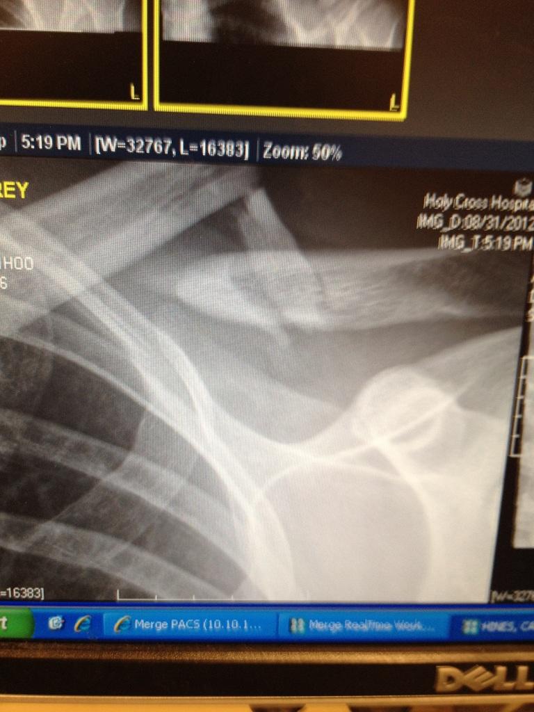 Broken clavicle!-img_1341-copy.jpg