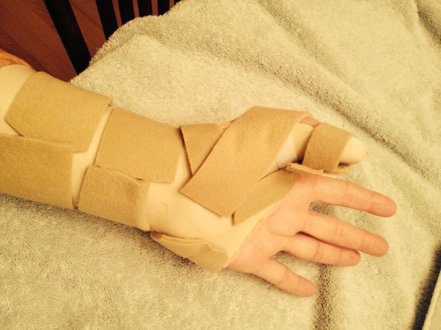 Finger tendon graft surgery, off the bike for a while-img_1361.jpg
