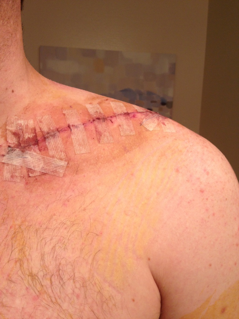 What are.your best bike crashes/injuries?-img_1374.jpg