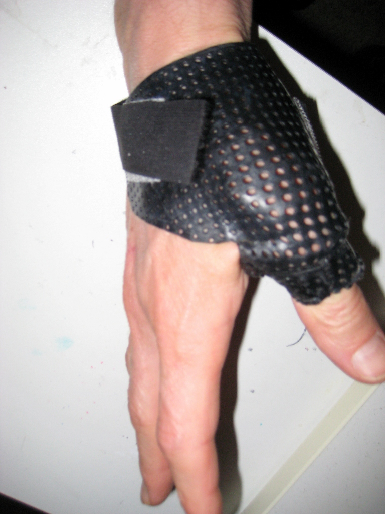 Time Out for Avulsion Fracture-img_1882-768x1024-.jpg