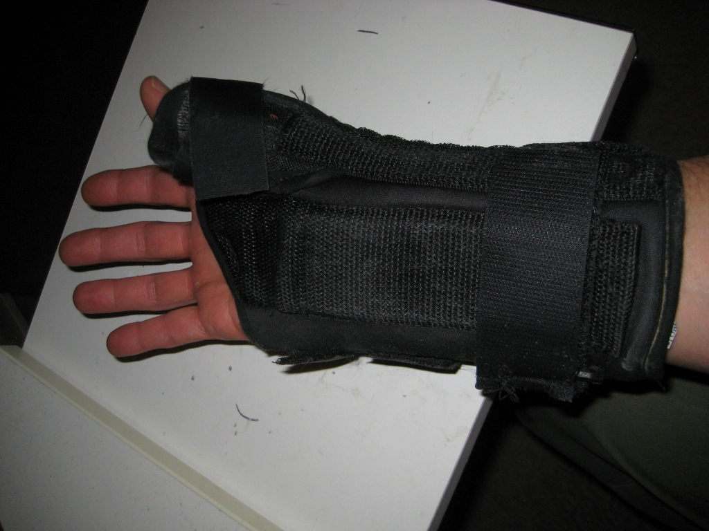 Time Out for Avulsion Fracture-img_1884-1024x768-.jpg