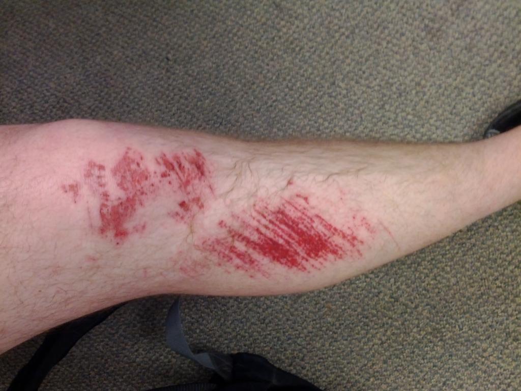 Lamest Biking Injury Ever-img_20120405_204218.jpg