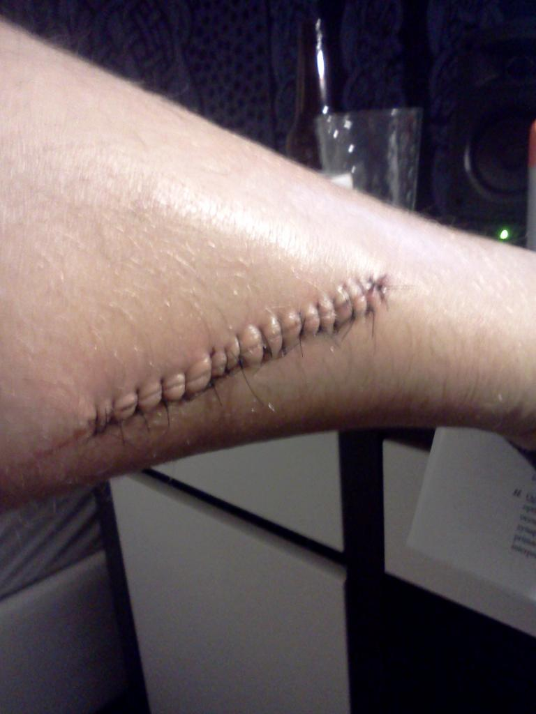 Avoiding a gash on your leg from 3rd chainring / Front Derailleur-img_20120702_212226.jpg