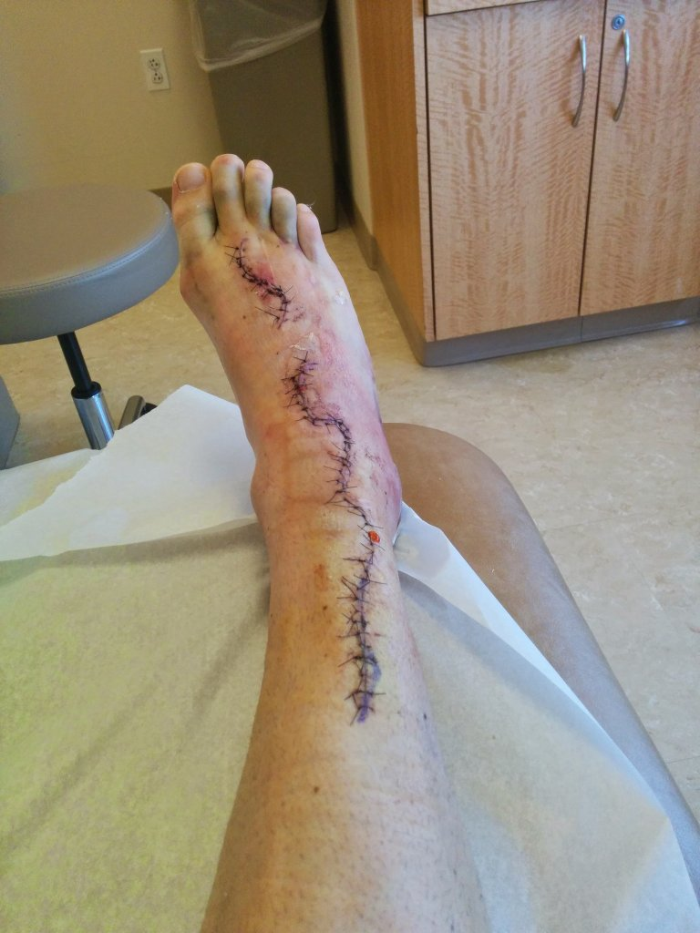 Finger tendon graft surgery, off the bike for a while-img_20140530_111540.jpg