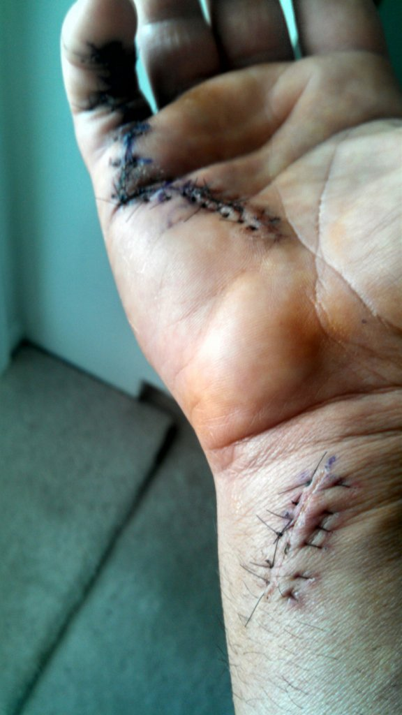 Finger tendon graft surgery, off the bike for a while-img_20141123_134058_351.jpg