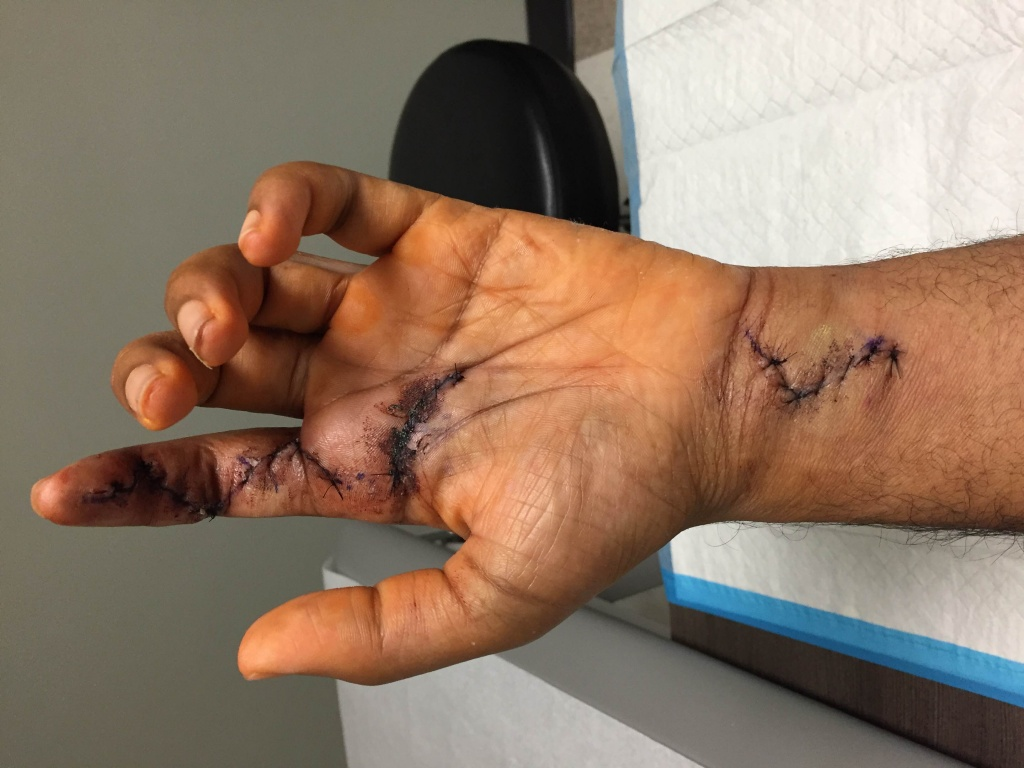 Finger tendon graft surgery, off the bike for a while-img_2688.jpg