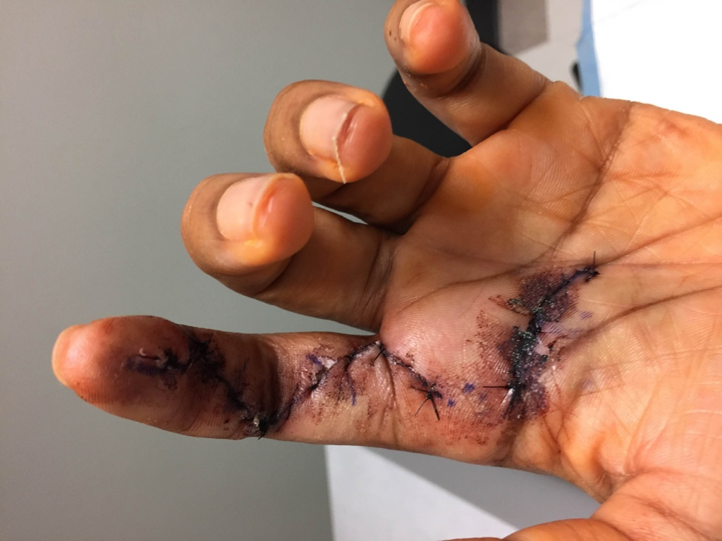 Finger tendon graft surgery, off the bike for a while-img_2690.jpg