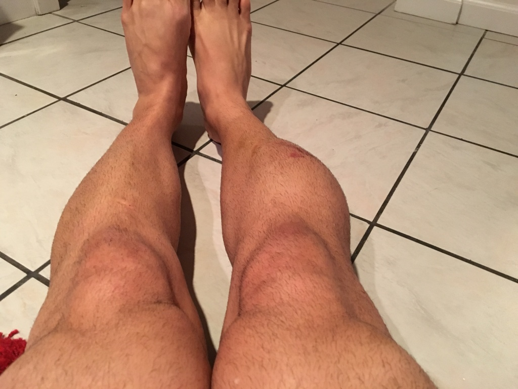 Best Protection for Lower Side of the Leg (Tibialis Anterior) - Bad Fall-img_3420.jpg