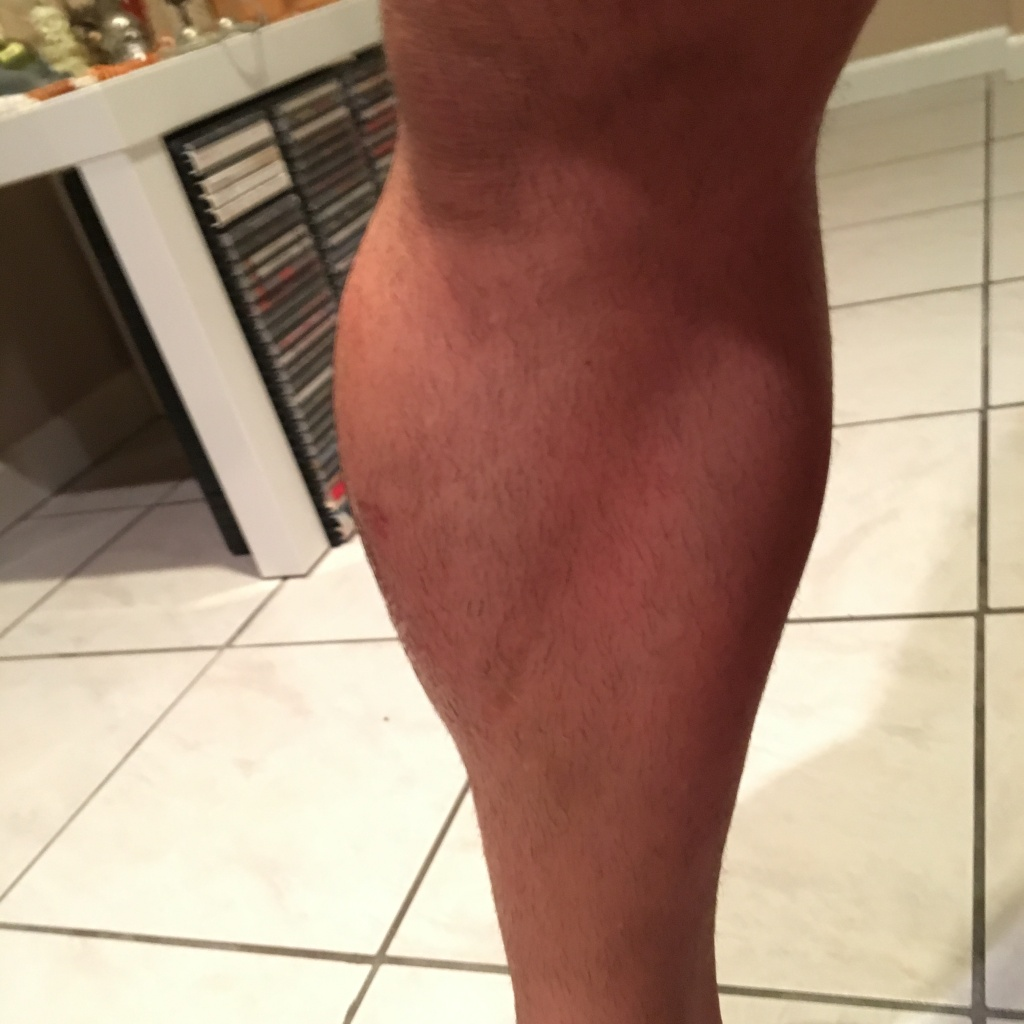 Best Protection for Lower Side of the Leg (Tibialis Anterior) - Bad Fall-img_3421.jpg