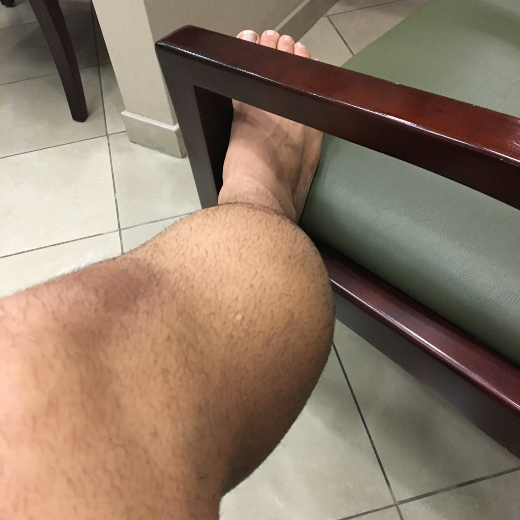 Best Protection for Lower Side of the Leg (Tibialis Anterior) - Bad Fall-img_3422.jpg