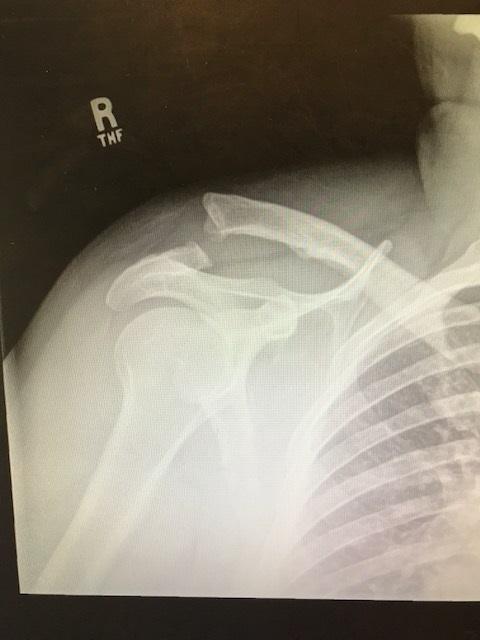 Ac Separation (shoulder Separation)-img_4642.jpg