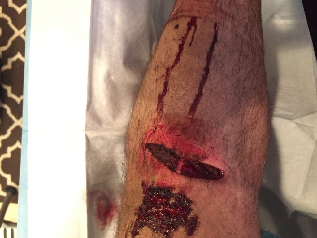 Knee protection post partial minesectomy-img_5602.jpg