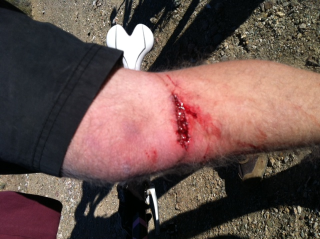 A little Mishap on the BCT today-josh-knee-3.jpg