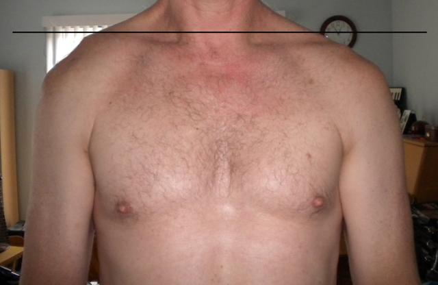 Ac Separation (shoulder Separation)-marksclavicle.jpg