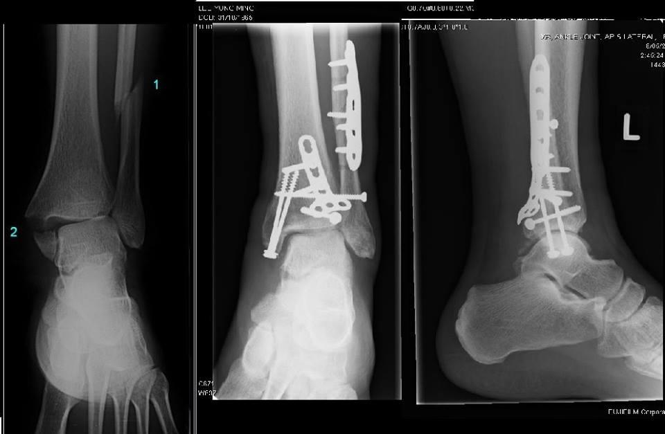 Broken Ankle Advice     - Mtbr com