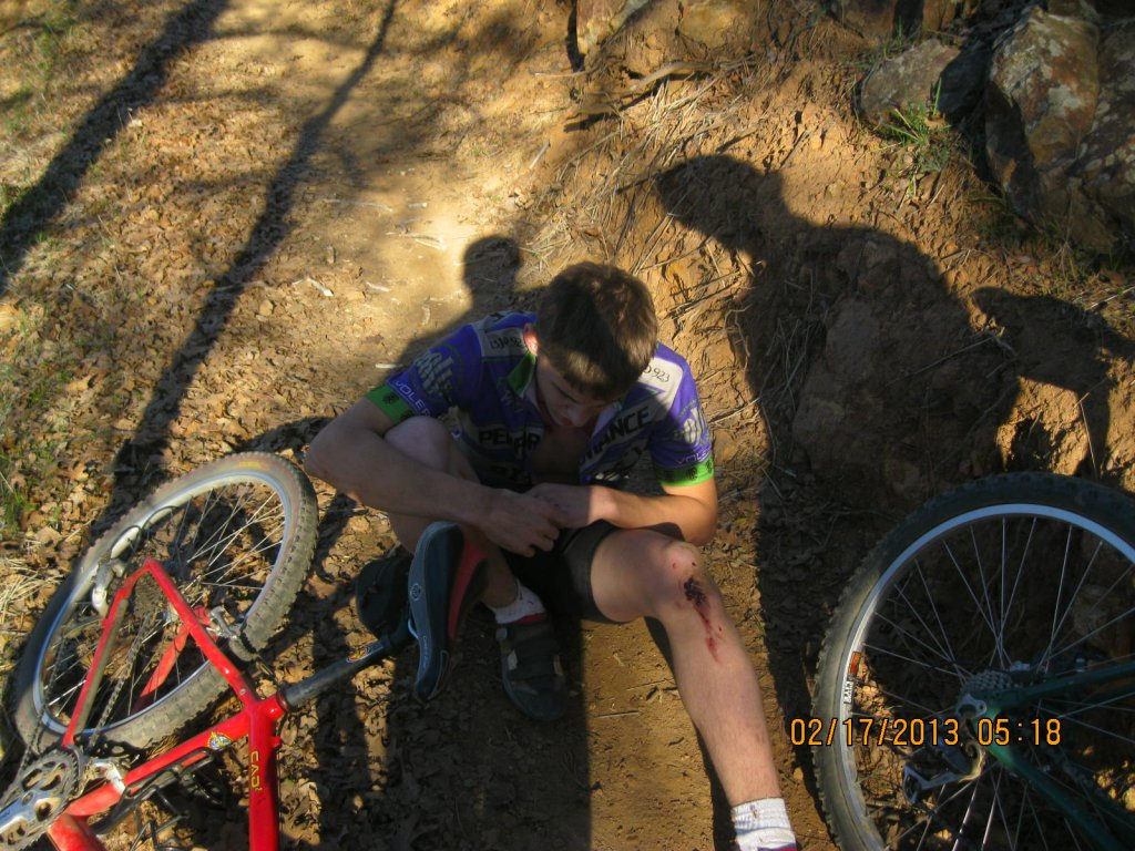 On average, when you crash, what part of your body hits the ground first-mtb-049.jpg