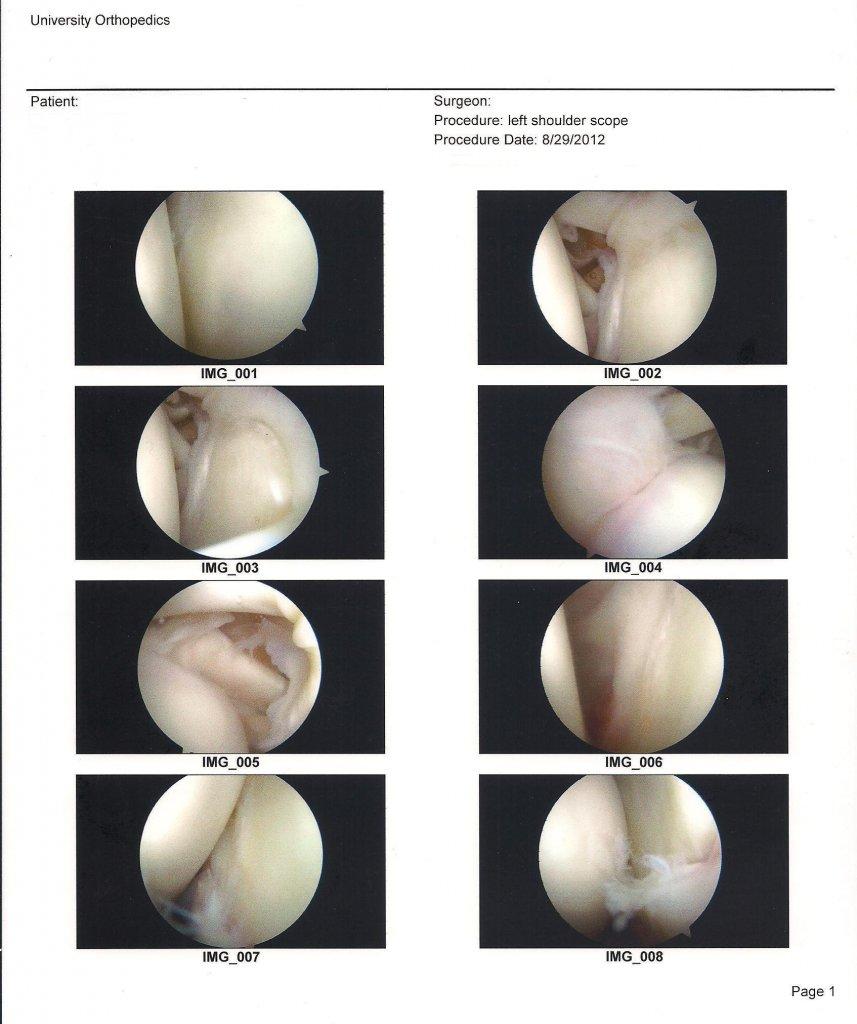 SLAP Tear (torn labrum left shoulder), Is a Full Recovery Without Surgery Possible?-mtbr-shoulder-image-upload-2.jpg