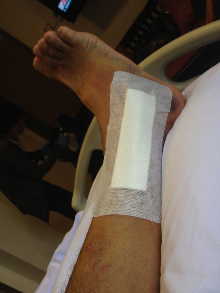 Broke my ankle-null_zps16faf883.jpg