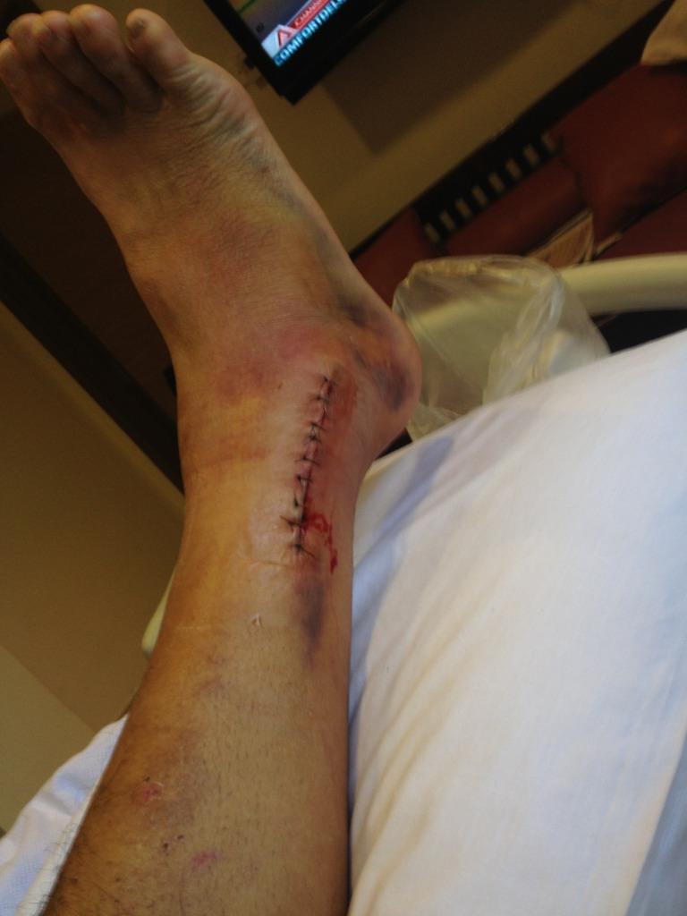 Broke my ankle-null_zps9933870a.jpg