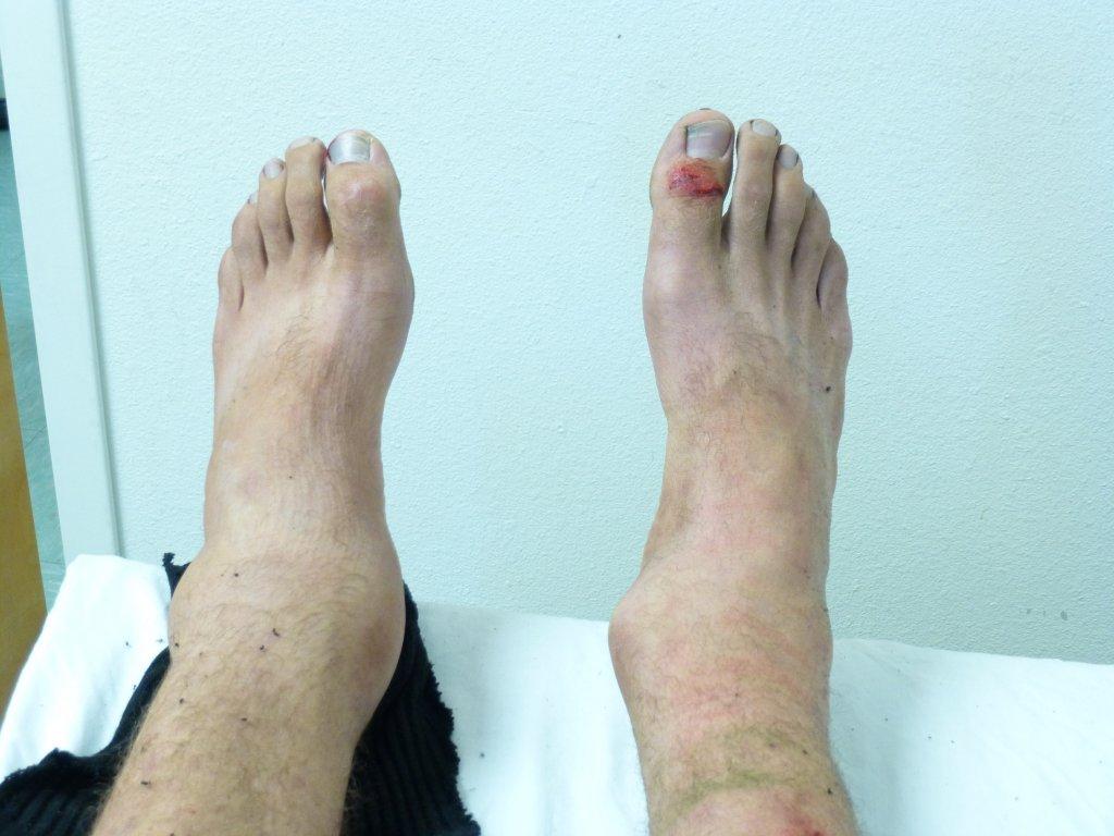 artrose natuurlijke behandeling