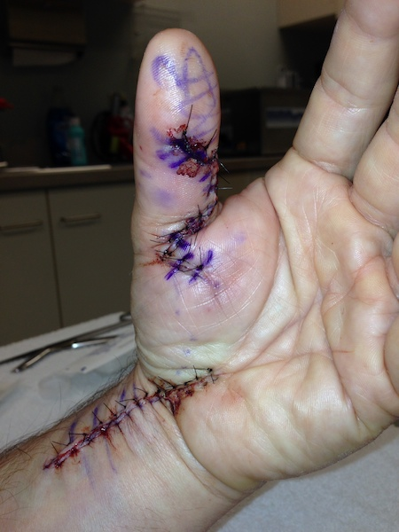 finger tendon graft surgery off the bike for a while mtbr com