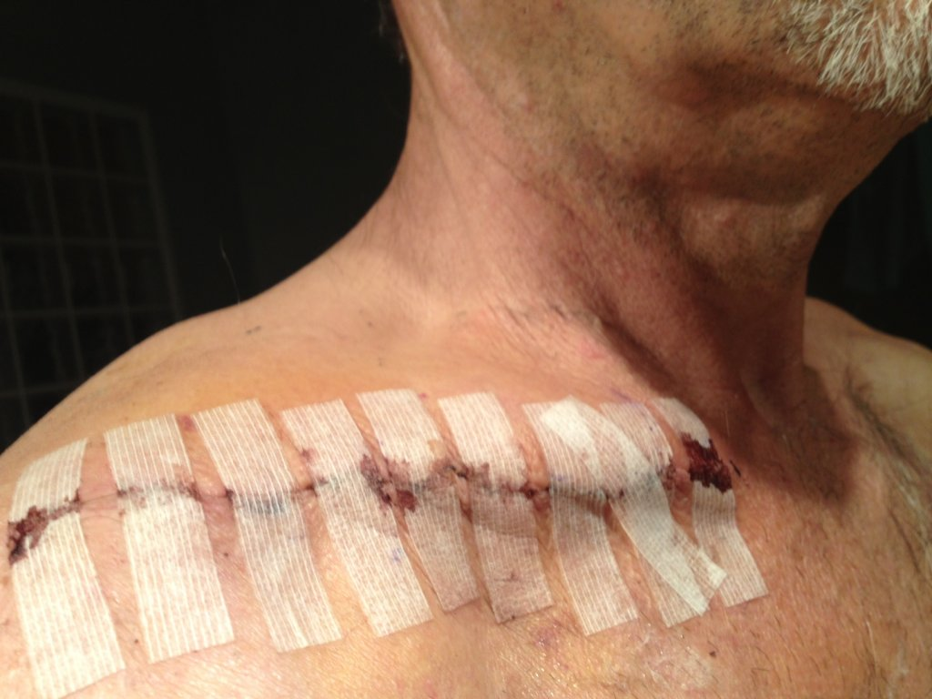 Broken Collar Bone... How to recover, what's the downtime?-photo-18-.jpg