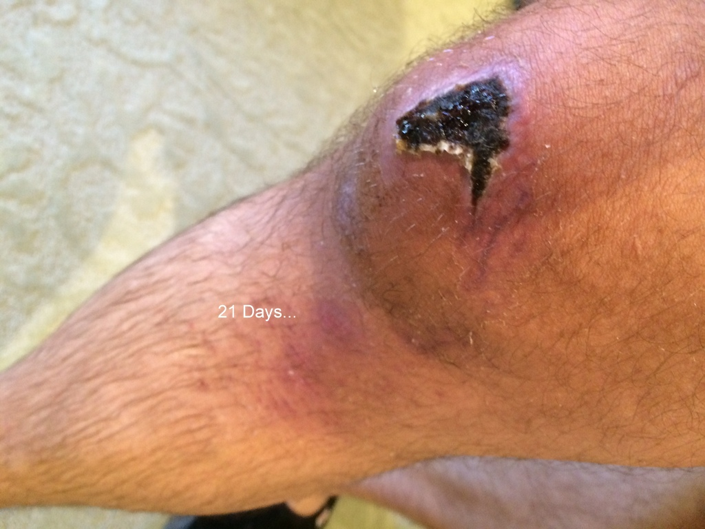 """""""If I was just wearing knee pads....""""  *Mildly Gross Pics*-photo-5.jpg"""