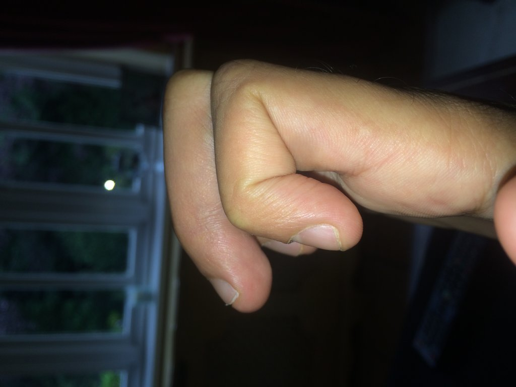 Finger tendon graft surgery, off the bike for a while-photo-6.jpg