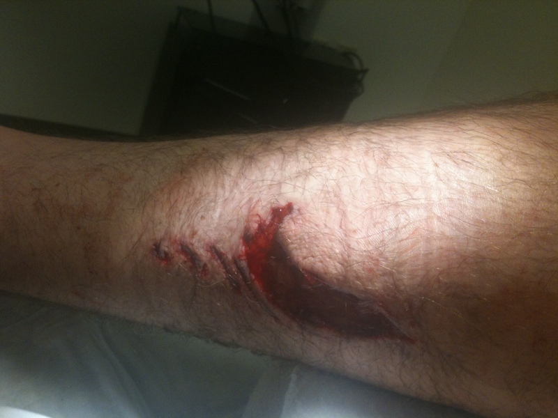 Avoiding a gash on your leg from 3rd chainring / Front Derailleur-photo-7-.jpg