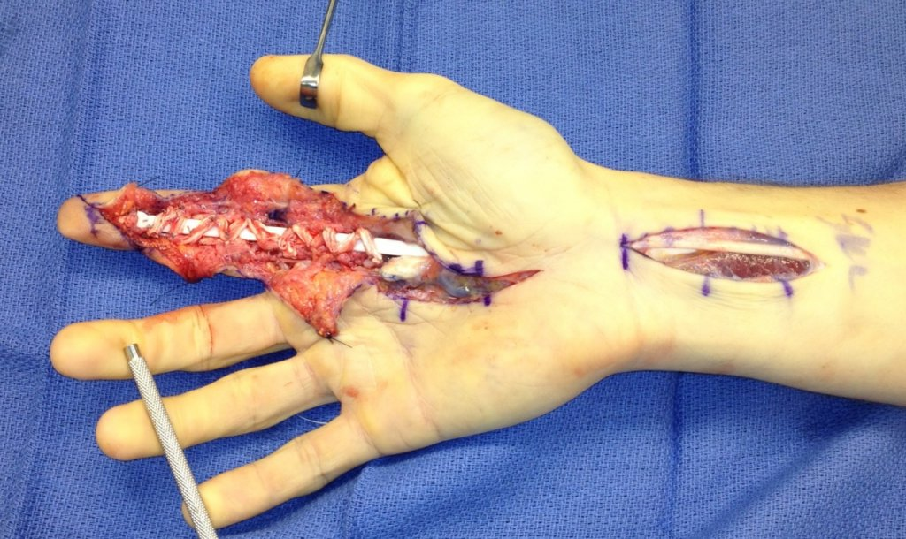 Finger tendon graft surgery, off the bike for a while-photo.jpg