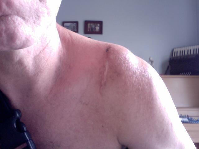 Ac Separation (shoulder Separation)-photo-2011-04-28-15.46.jpg