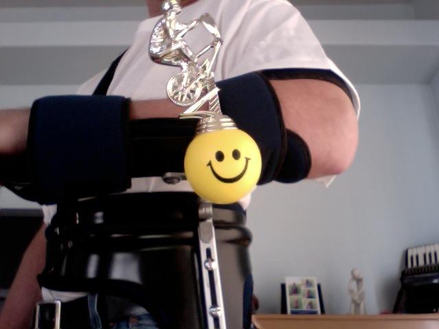 Ac Separation (shoulder Separation)-photo-2011-05-11-11.38.jpg