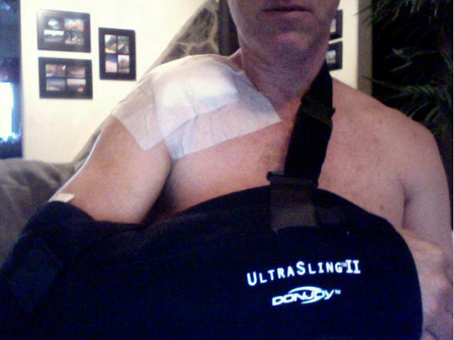 Ac Separation (shoulder Separation)-post-surgery-4_21.jpg