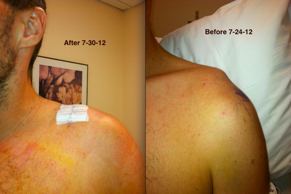 Ac Separation (shoulder Separation)-screen-shot-2012-07-30-5.40.47-pm.jpg