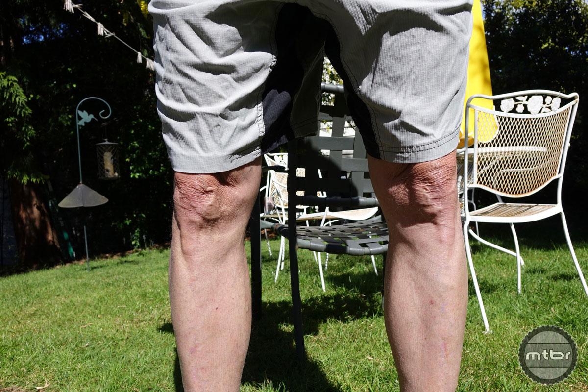 Short Knees