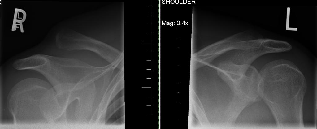 Ac Separation (shoulder Separation)-shoulders.jpg