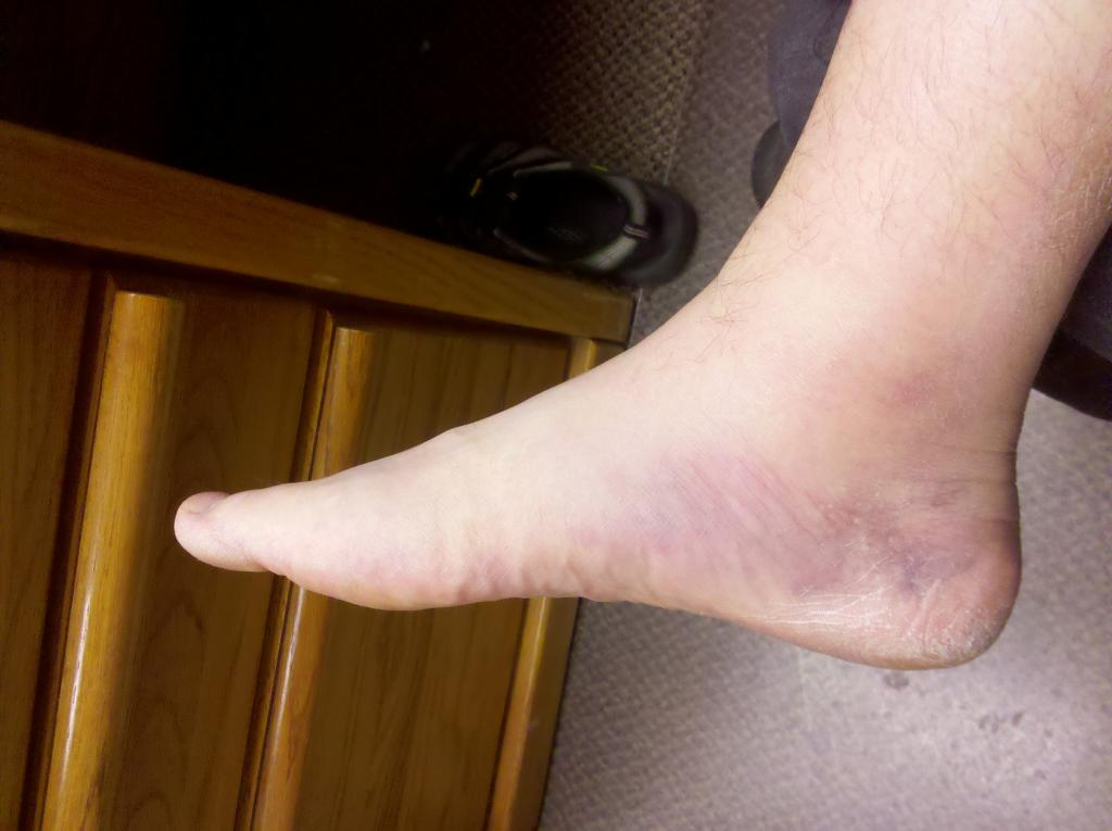 Anyone Going up to Trestle July 4 weekend?-sprained-ankle-1.jpg