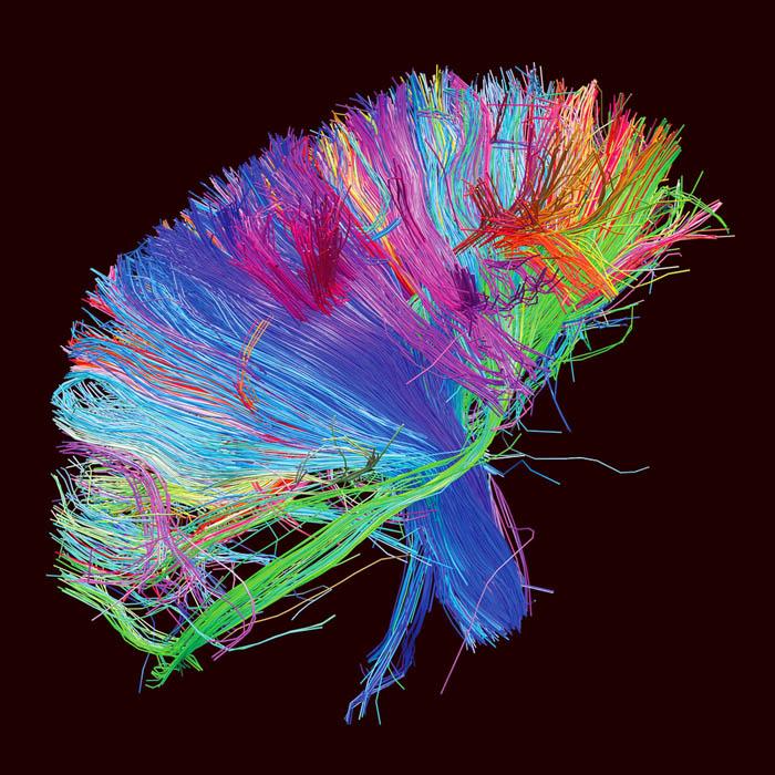 Brain stuck in recursive loop-the2ndlaw.jpg