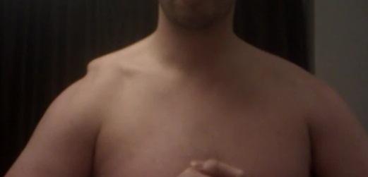 Ac Separation (shoulder Separation)-three.jpg