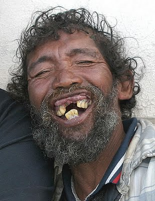 Name:  Ugly-and-Weird-People-Ugly-Teeth-10.jpg