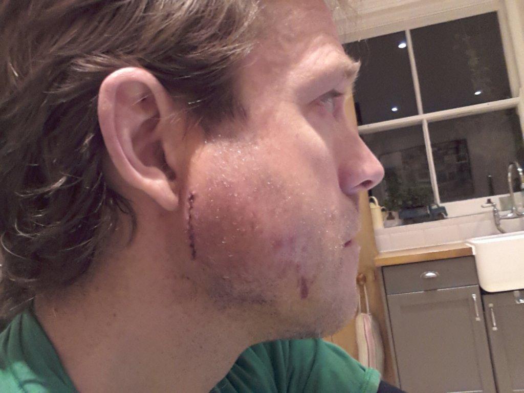 Broken jaw recovery starts here- Mtbr.com