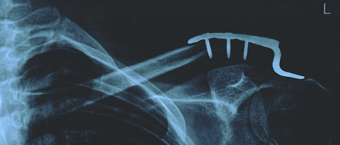 Broken collarbone - sucks more than most...-xray3.png